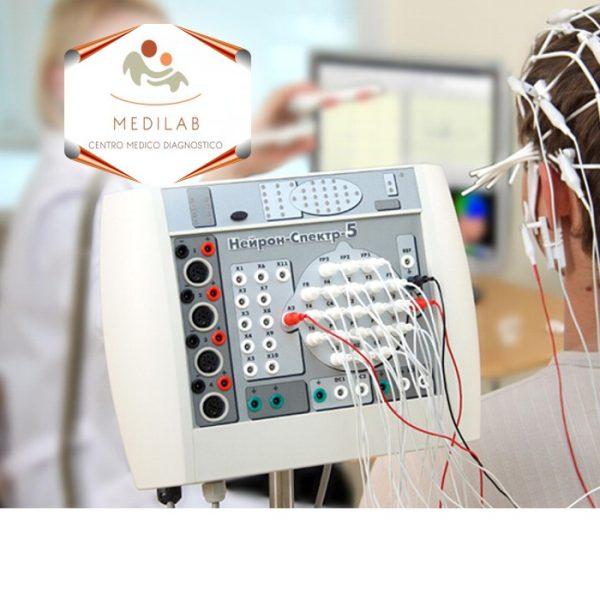 eletoencefalogramma