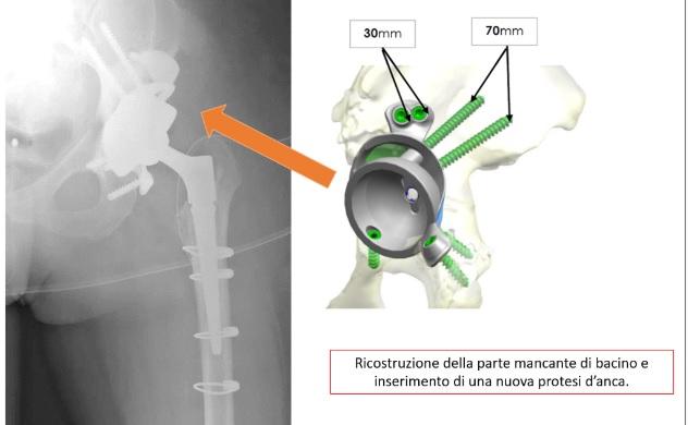 Ricostruzione dell'anca con protesi in 3d nell'Ospedale San Salvatore