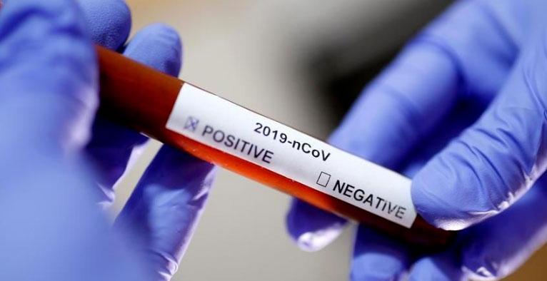 Due nuovi casi positivi al Covid-19 a Pescina, il totale è ora di 12 contagiati