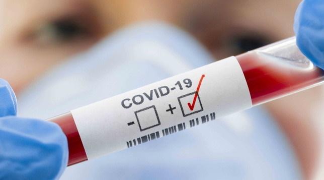 Oggi altri 7 casi Covid a Celano. Il totale dei positivi sale a 110