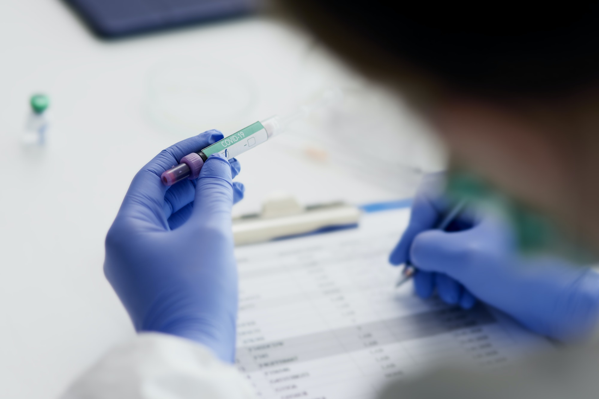 Doctor making notes after coronavirus test