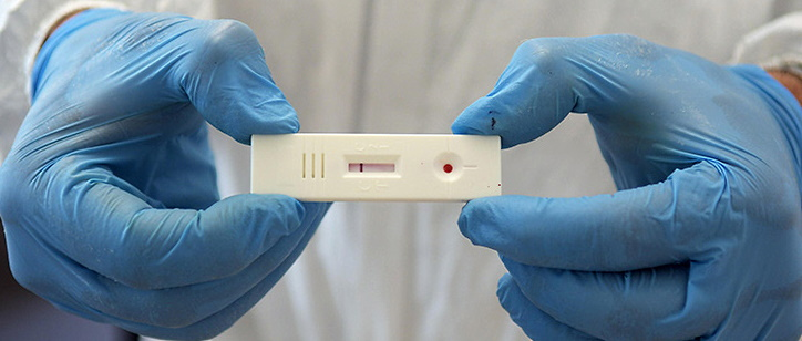 Test sierologici gratuiti per studenti, genitori e personale scolastico a Cese dei Marsi