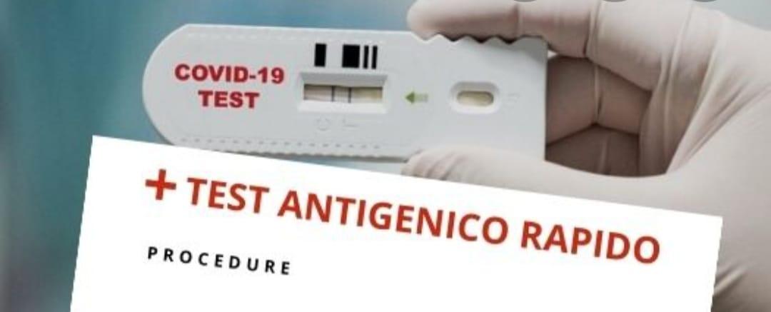 Al via domani la campagna screening con tamponi antigenici a Lecce nei Marsi