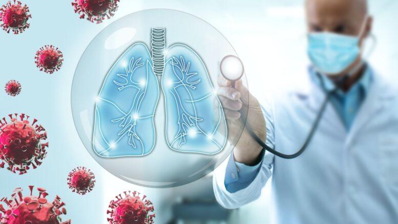 """Covid-19, pneumologo Carducci: """"Molte richieste da Avezzano. Ho visto morire un numero impressionante di pazienti"""""""