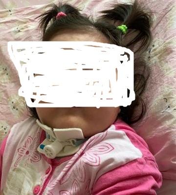 Al via la raccolta fondi per aiutare la piccola Francesca di due anni, affetta da una malattia rarissima