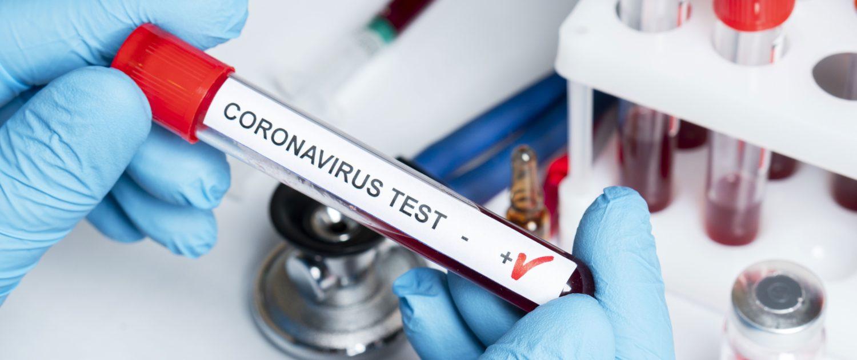 Coronavirus in Abruzzo: oggi 105 nuovi positivi