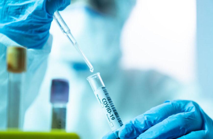 Coronavirus in Abruzzo, oggi 85 nuovi positivi