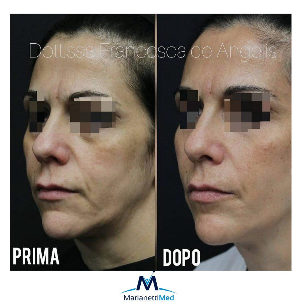MARIANETTIMED: i trattamenti di medicina estetica piu' sicuri!