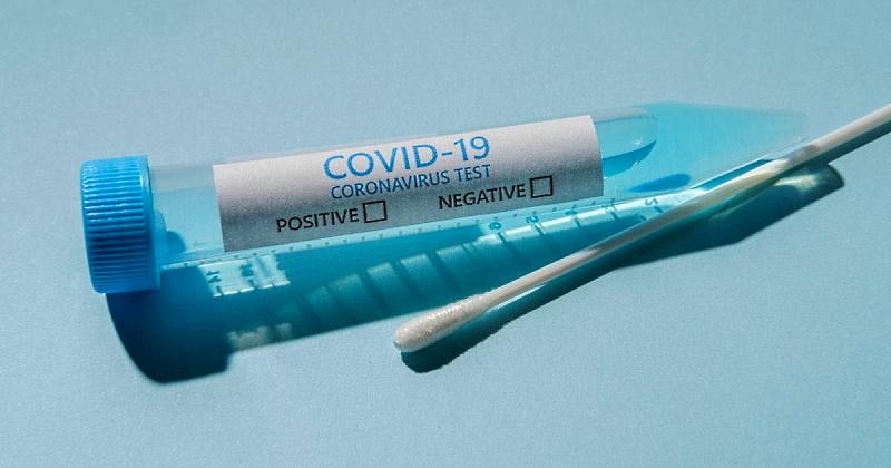 Nuovo screening con tamponi antigenici a Sante Marie